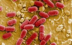 大肠杆菌检测成为高科技